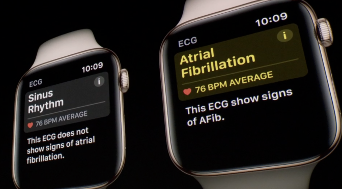 apple-watch-afib