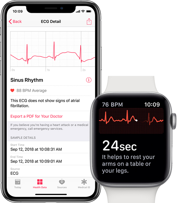 apple-watch-ecg-readings